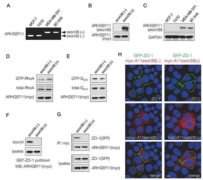 Expression and characterization of ARHGEF11 isoform in breast cancer cells.