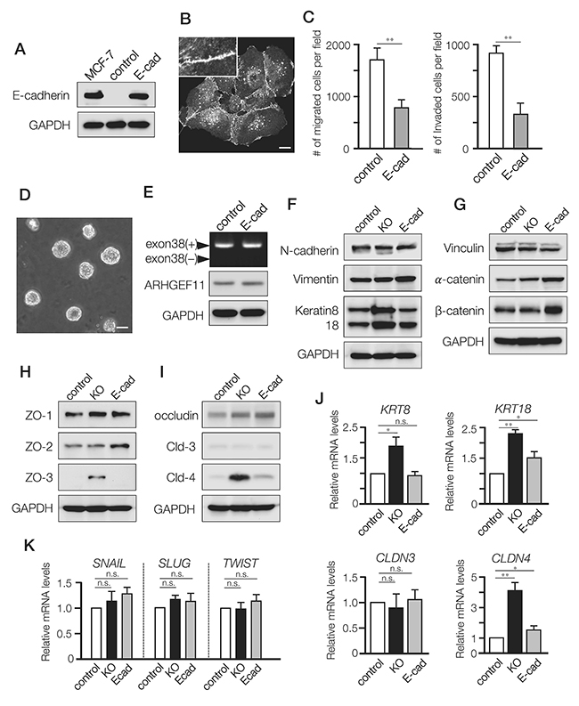 Differential effects of A11exon38(+) depletion and exogenous expression of E-cadherin in MDA-MB-231 cells.