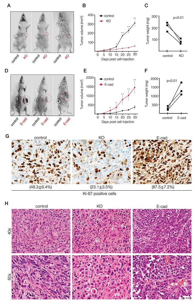 In vivo xenograft tumor formation of MDA-MB-231 cells depleted of A11exon38(+) or exogenously expressed E-cadherin.