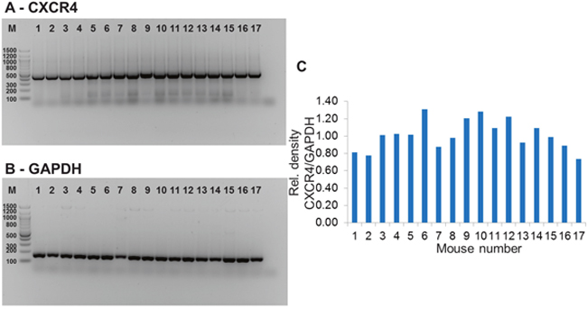 Results of mRNA analysis for assessment of ex vivo CXCR4 expression in tumor tissue.