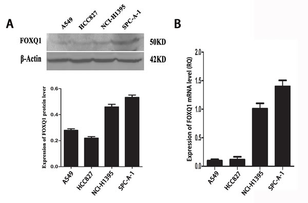 Expression of FoxQ1 protein and mRNA in four non-small cell lung cancer cell lines.