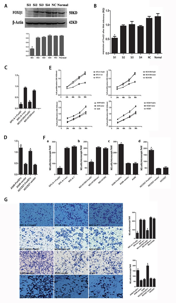 Effect of depleting or enforcing the expression of FoxQ1 on cell proliferation, migration and invasiveness of lung carcinoma cells.