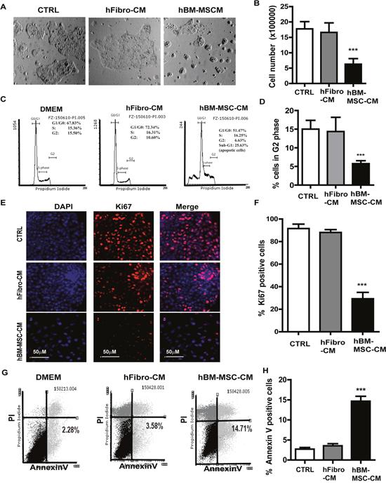 hBM-MSC-CM exhibits anti-proliferation and pro-apoptosis effect on SSCs.