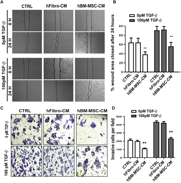 hBM-MSC-CM inhibits the migration and invasiveness of SCCs.