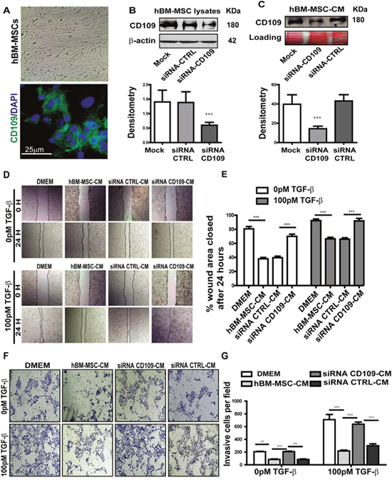 Knockdown of CD109 by targeted siRNA in hBM-MSCs significantly abrogated the anti-migration and anti-invasion of hBM-MSC-CM.