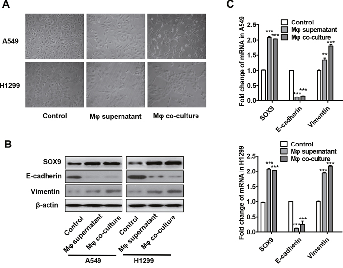 Macrophages promote the transformation of tumor cells into an EMT-like phenotype.