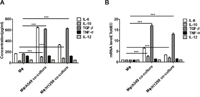 Lung cancer cells induced M2 polarization in macrophages.