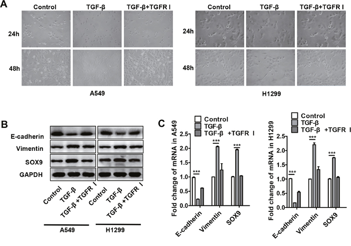 TGF-β increased SOX9 expression and induced transformation into an EMT-like phenotype in lung cancer cells.