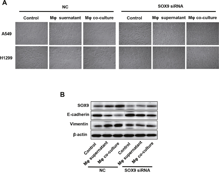 Macrophages induced SOX9-dependent EMT-like phenotype in lung cancer cells.