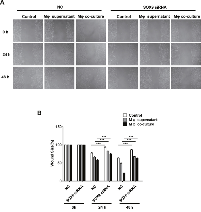 Macrophages promote SOX9-dependent migration in lung cancer cells.