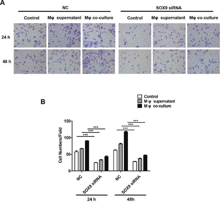 Macrophages promote SOX9-dependent invasion in lung cancer cells.