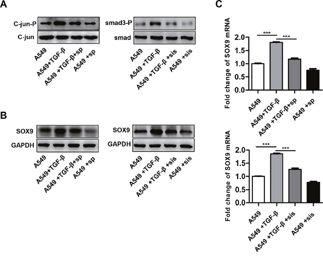 TGF-β promotes SOX9 expression via the C-Jun and SMAD3 signaling pathway.