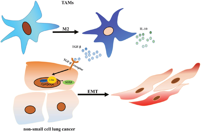 TAMs promote tumor metastasis via the TGF-β/SOX9 axis in non-small cell lung cancer.