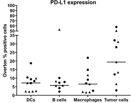 Expression of PD-L1 on immune cells and tumor cells in pleural and ascites fluids of MPM patients.