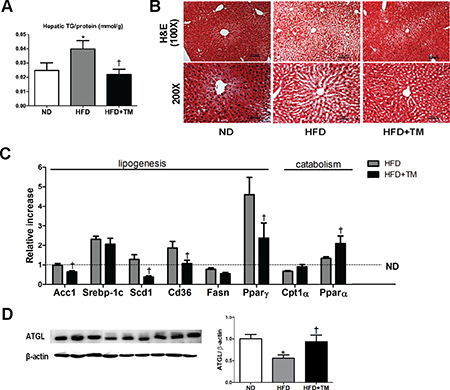 Early TM5441 treatment prevents HFD-induced hepatic steatosis.