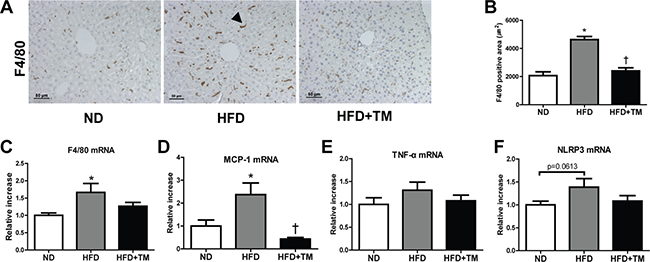 Early TM5441 treatment suppressed hepatic inflammation in HFD mice.