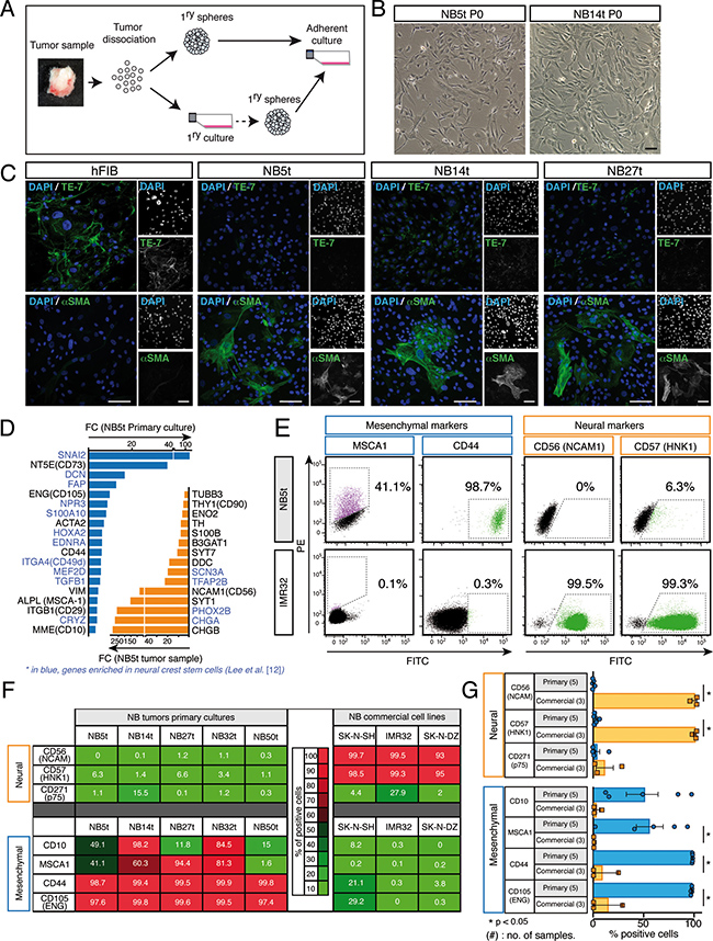 Characterization of stromal phenotype in primary adherent cell cultures isolated from stage 4/M NB tumor biopsies.