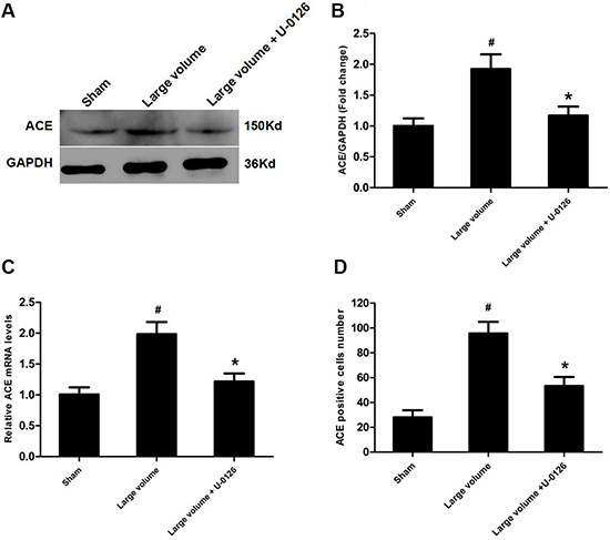 Inhibition of ERK contributes to down-regulation of ACE expression in peri-infarct regions induced by pMCAO.