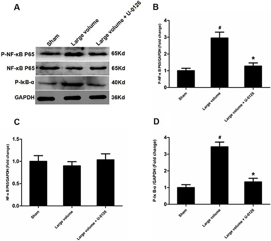 Inhibition of ERK is involved in deactivation of NF-κB in peri-infarct regions induced by pMCAO.