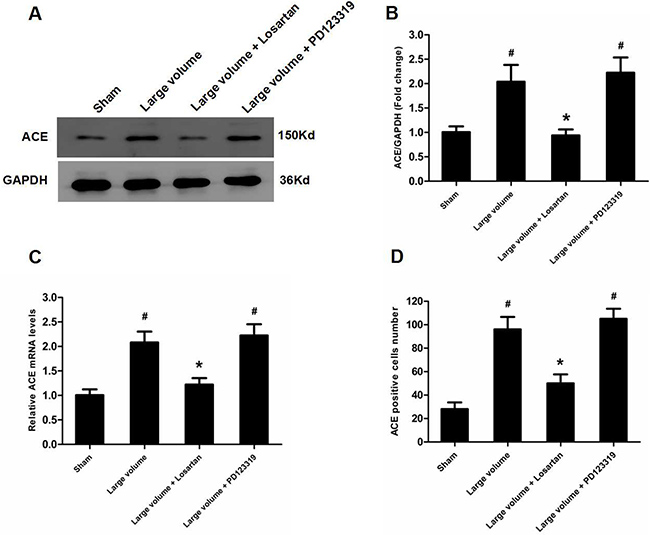 Up-regulation of ACE expression induced by pMCAO is mediated by AT1R rather than AT2R.