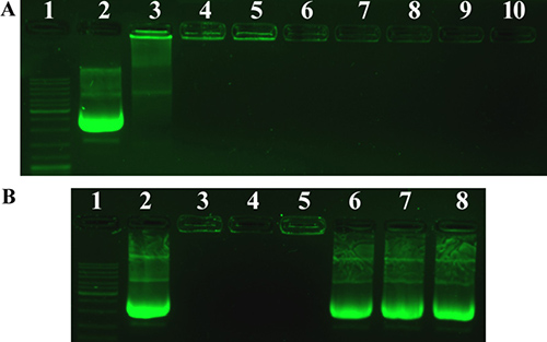 Agarose gel electrophoresis of PF33/pDNA complexes, HAC/pDNA complexes and RRPHC/pDNA nanoparticles.