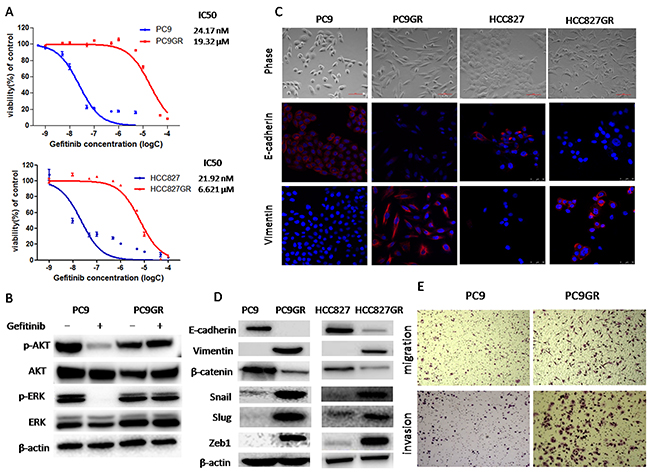 Gefitinib-resistance (GR) cells acquired an epithelial-mesenchymal transition (EMT) phenotype and increased migration and invasion abilities.