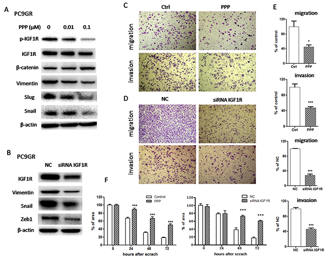 Inhibition of IGF1R reversed EMT and suppressed migration and invasion in PC9GR cells.