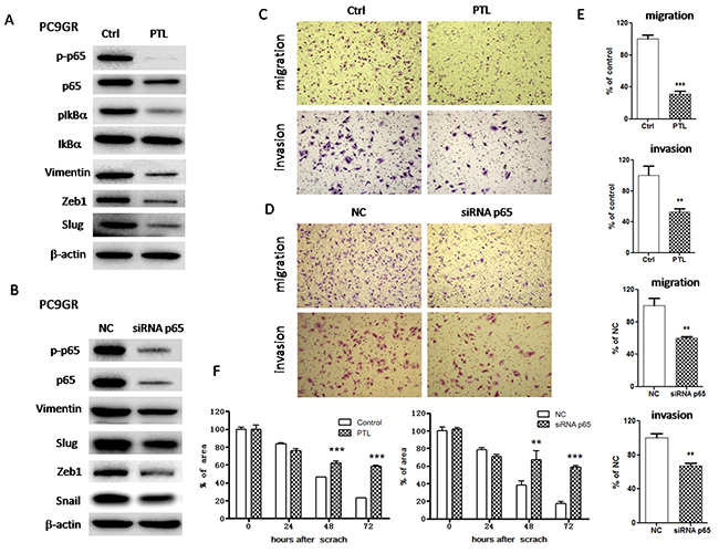 Inhibition of NF-κB p65 reversed EMT and suppressed migration and invasion in PC9GR cells.