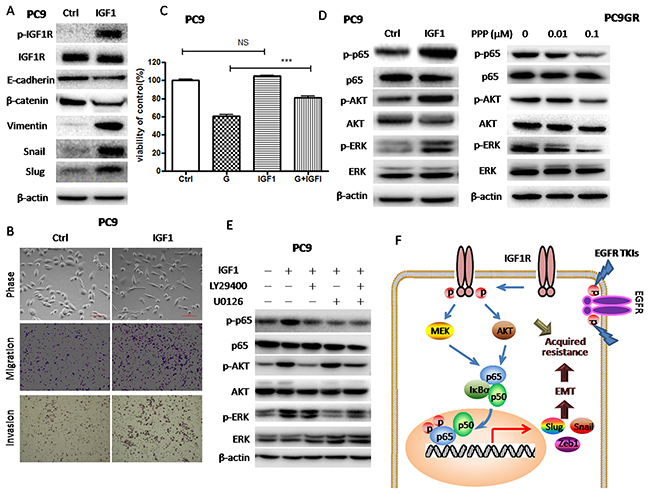 IGF1R activation by exogenous IGF1 led to Akt/Erk/NF-κB p65 activation, decreased sensitivity to gefitinib and EMT induction.