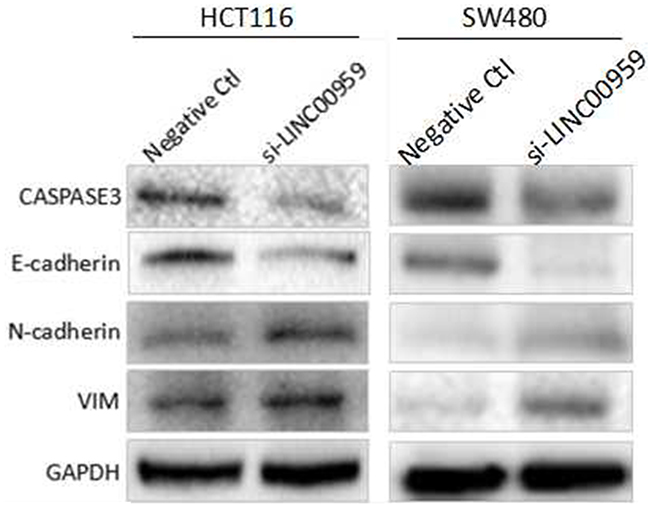 LINC00959 knockdown regulates EMT- and apoptosis-related proteins in CRC cells.