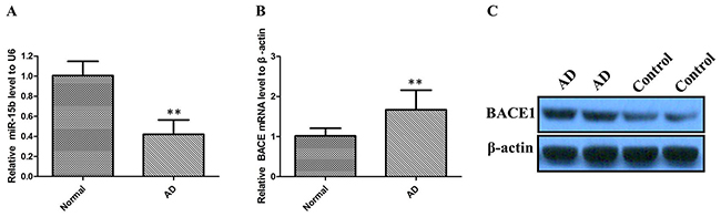 The relative expression of miR-15b and BACE1 were determined by qRT-PCR and western blot in AD patients.