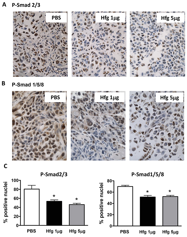 Halofuginone reduces TGF-β and BMP signaling in vivo.