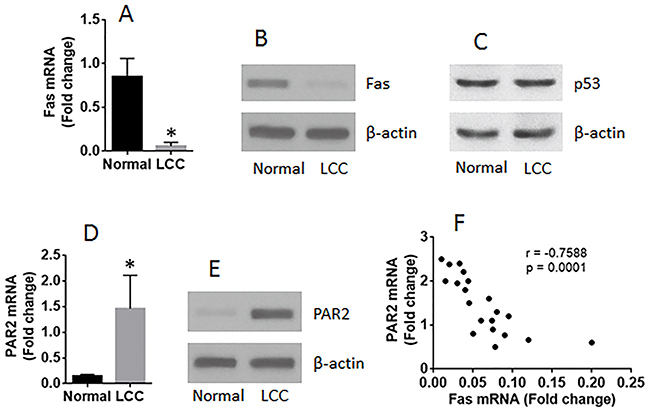 The expression of Fas is negatively correlated with PAR2 expression in LCCs.