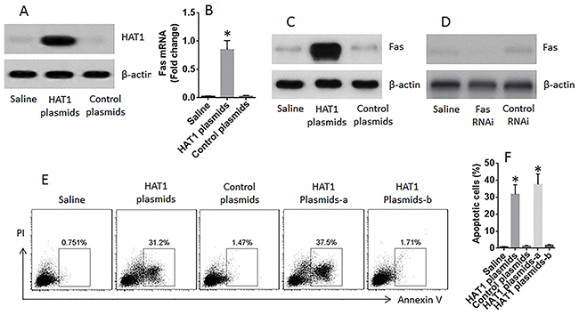 Restoration of HAT1 induces LCCs apoptosis.