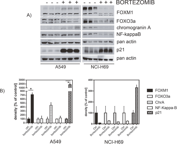 Western blot analysis revealed affected protein expression after treatment with bortezomib.