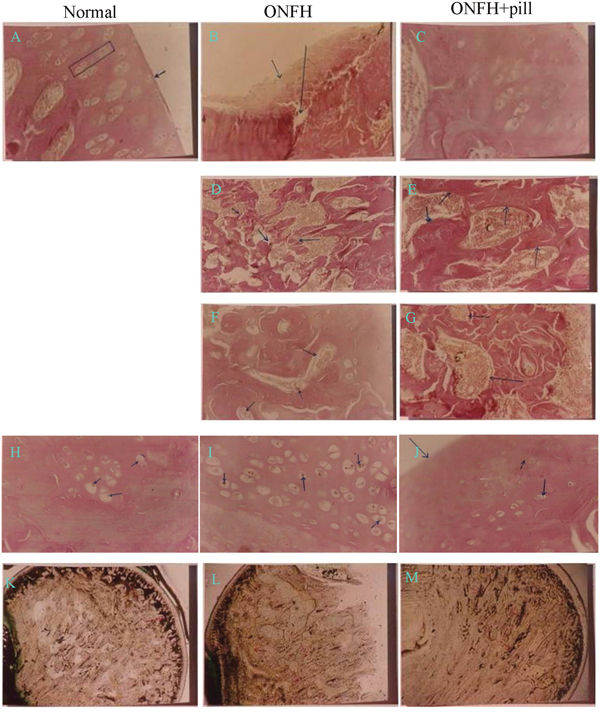 The bone-strengthening pill (BSP) reduces osteonecrotic changes in osteonecrosis of the femoral head (ONFH) in rats.