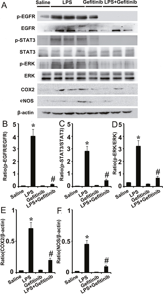 Gefitinib suppressed phosphorylation of ERK1/2 and STAT3, and expression of COX-2 and eNOS by blocking EGFR activation in a LPS induced AKI model.