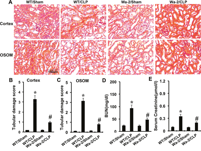 CLP induced AKI is attenuated in Wa-2 mice.