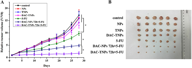 Antitumor efficacies of different treatments in nude mouse MKN45 xenograft models.
