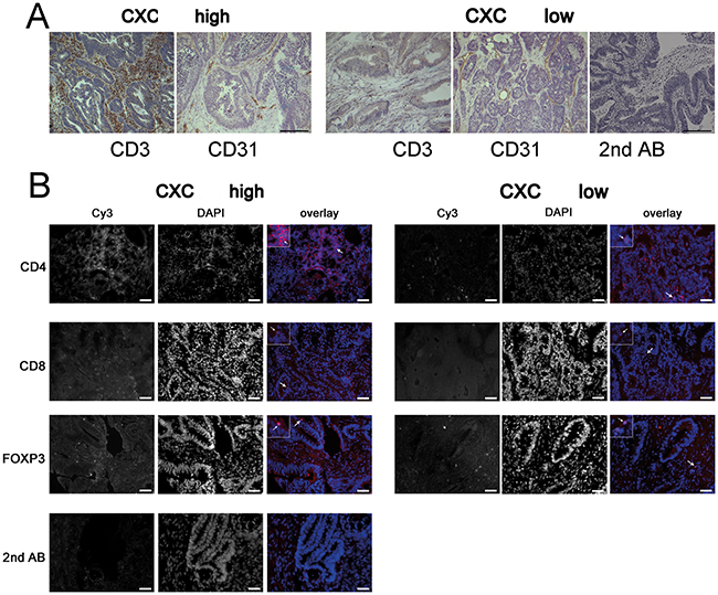 CXCL11 expression is correlated with T-cell infiltration.