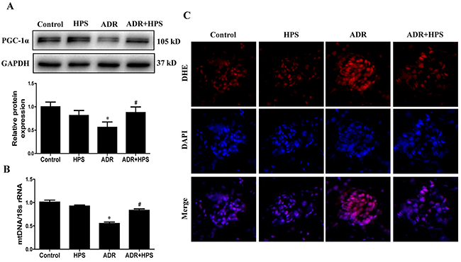 Effect of hyperoside on adriamycin-induced mitochondrial dysfunction in vivo.