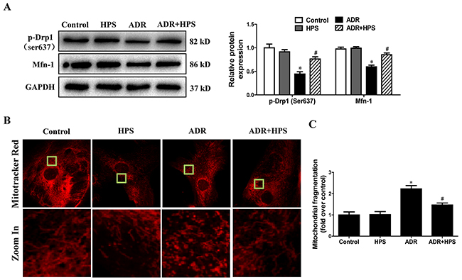 Effect of hyperoside on adriamycin-induced mitochondrial fission in vitro.