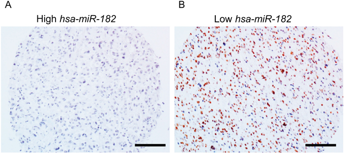 PPP1R1C and miR-182 are inversely correlated in patients with GBM.