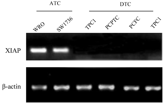 XIAP was abundantly expressed in the ATC cell lines WRO and SW1736, whereas, no expression was found in DTC cell lines.