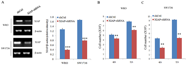 Cell proliferation evaluation in ATC cell lines after XIAP shRNA transfection.
