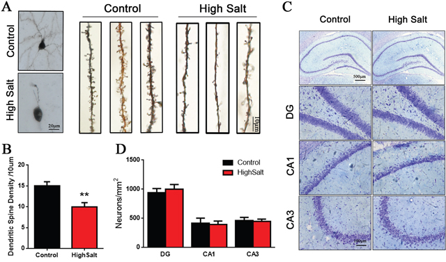 Loss of dendritic spines in the high saline-administrated rats.