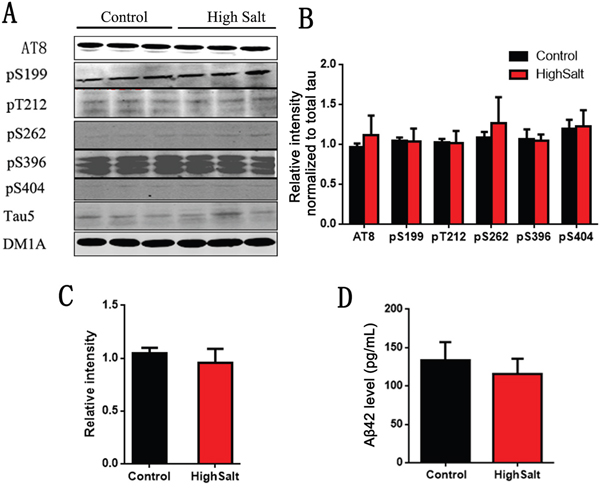 No change of Tau and Aβ in hippocampus of high salt diet.