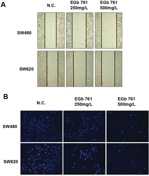 EGb 761 inhibits the migration and invasion of colorectal cancer cells.