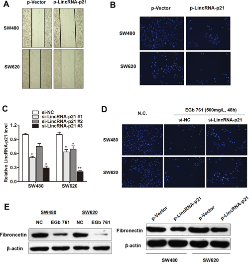 EGb 761 inhibits metastasis of colorectal cancer cells through upregulation of LincRNA-p21.