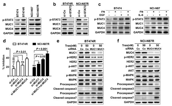STAT3 upregulates the expression of MUC1 and MUC4 that mediates trastuzumab resistance.